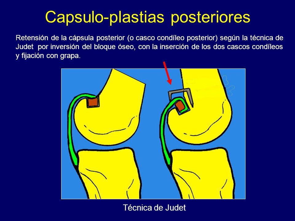 Capsulo-plastias posteriores Retensión de la cápsula posterior (o casco condíleo posterior) según la técnica de Judet por inversión del bloque óseo, c