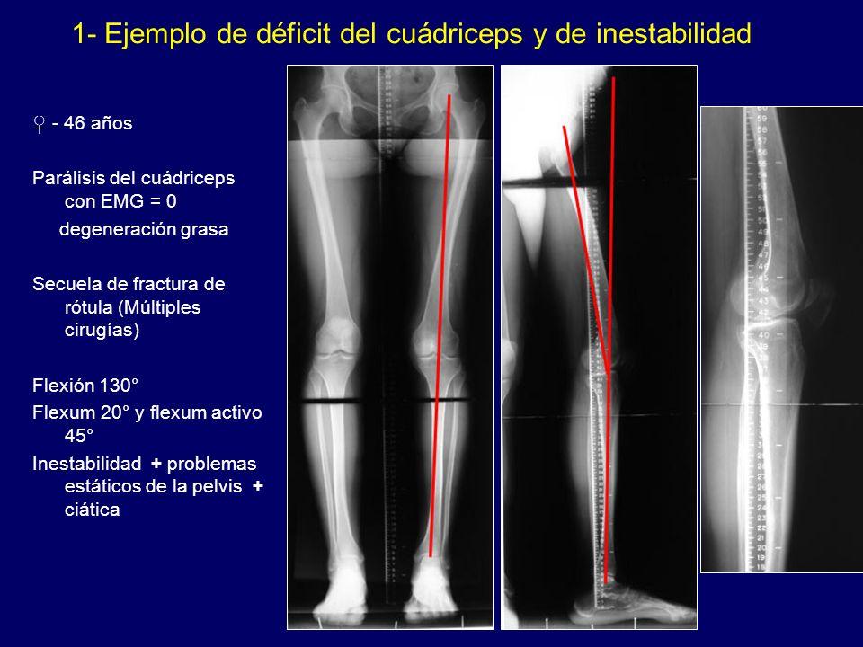- 46 años Parálisis del cuádriceps con EMG = 0 degeneración grasa Secuela de fractura de rótula (Múltiples cirugías) Flexión 130° Flexum 20° y flexum