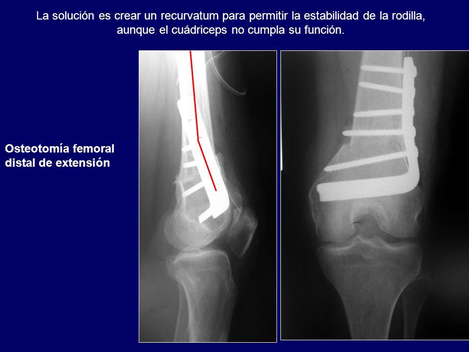 La solución es crear un recurvatum para permitir la estabilidad de la rodilla, aunque el cuádriceps no cumpla su función. Osteotomía femoral distal de