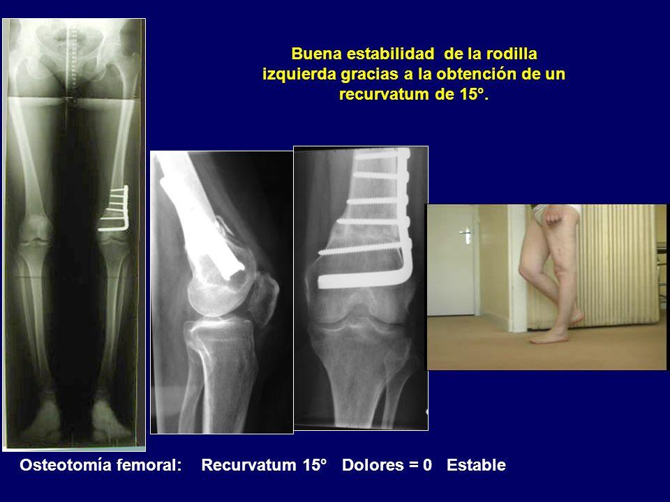 Osteotomía femoral: Recurvatum 15° Dolores = 0 Estable Buena estabilidad de la rodilla izquierda gracias a la obtención de un recurvatum de 15°.