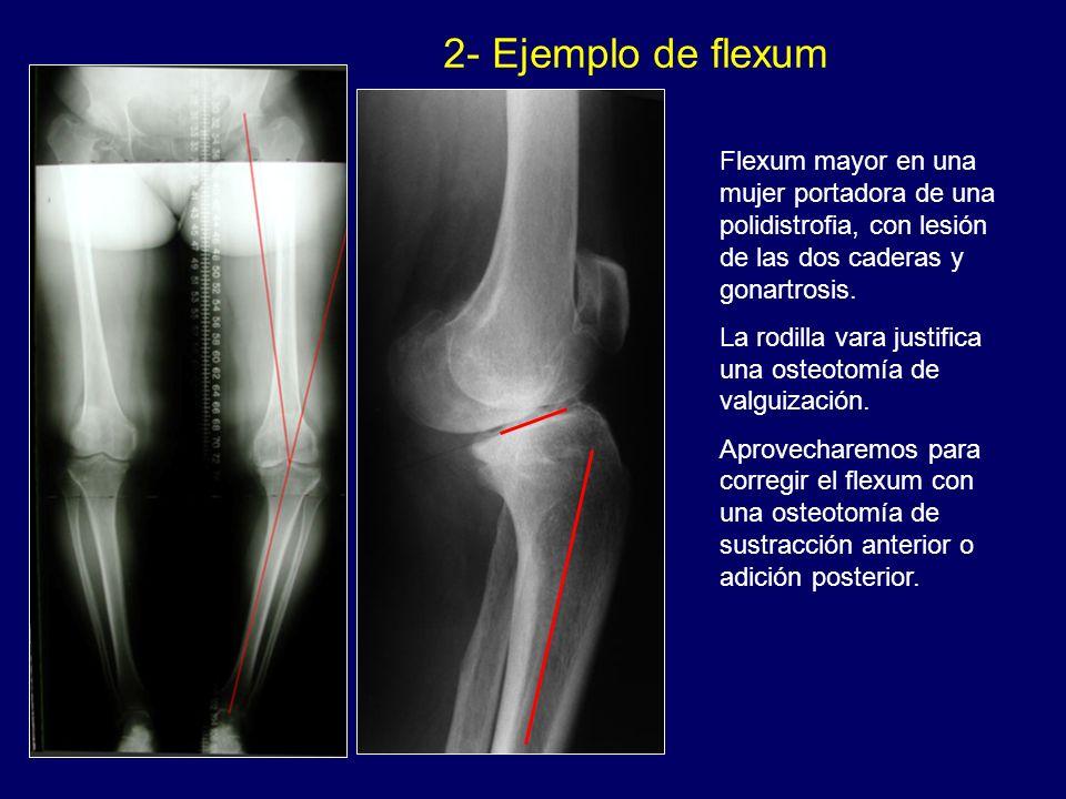 Flexum mayor en una mujer portadora de una polidistrofia, con lesión de las dos caderas y gonartrosis. La rodilla vara justifica una osteotomía de val