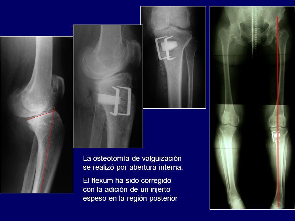 La osteotomía de valguización se realizó por abertura interna. El flexum ha sido corregido con la adición de un injerto espeso en la región posterior