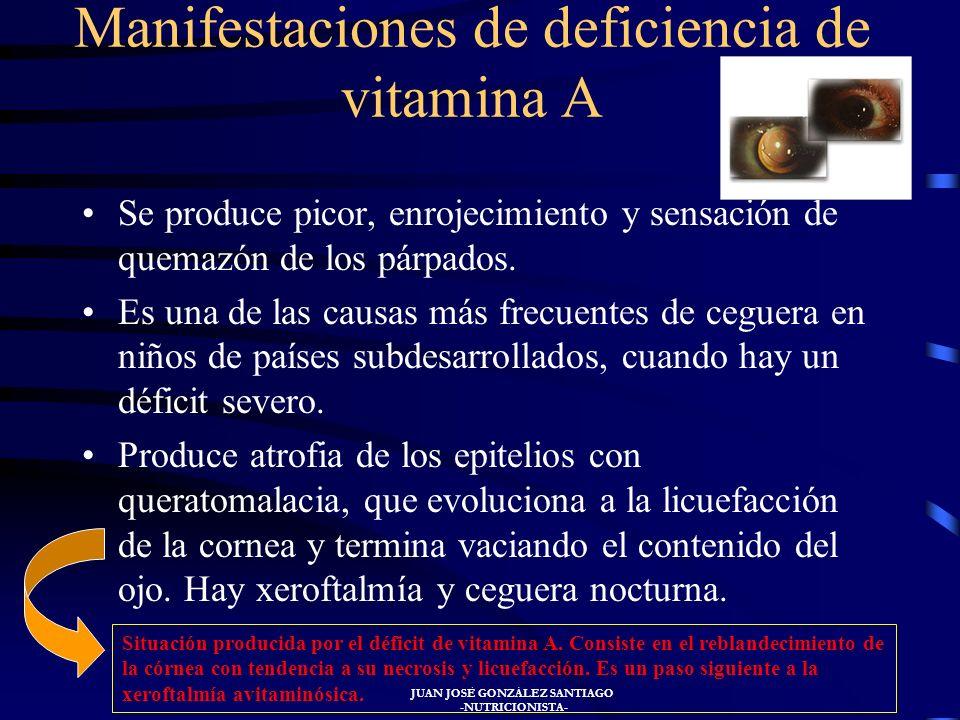 JUAN JOSÉ GONZÁLEZ SANTIAGO -NUTRICIONISTA- VITAMINA A Se denomina también antiinfecciosa y antixeroftálmica. Es un alcohol terpénico o retinol. Es ne