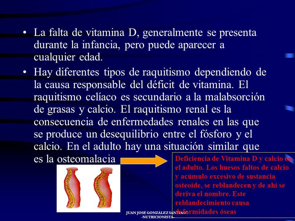 JUAN JOSÉ GONZÁLEZ SANTIAGO -NUTRICIONISTA- VITAMINA D El raquitismo es una enfermedad producida por la carencia de vitamina D, Calcio y fósforo. El h