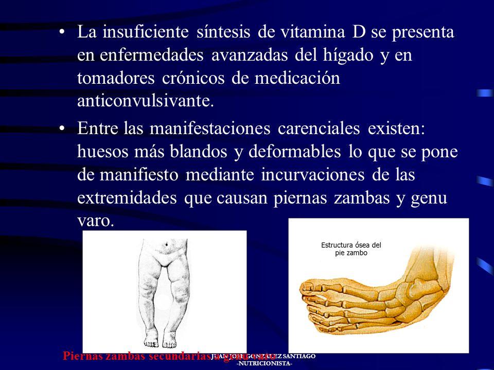 JUAN JOSÉ GONZÁLEZ SANTIAGO -NUTRICIONISTA- La falta de vitamina D, generalmente se presenta durante la infancia, pero puede aparecer a cualquier edad