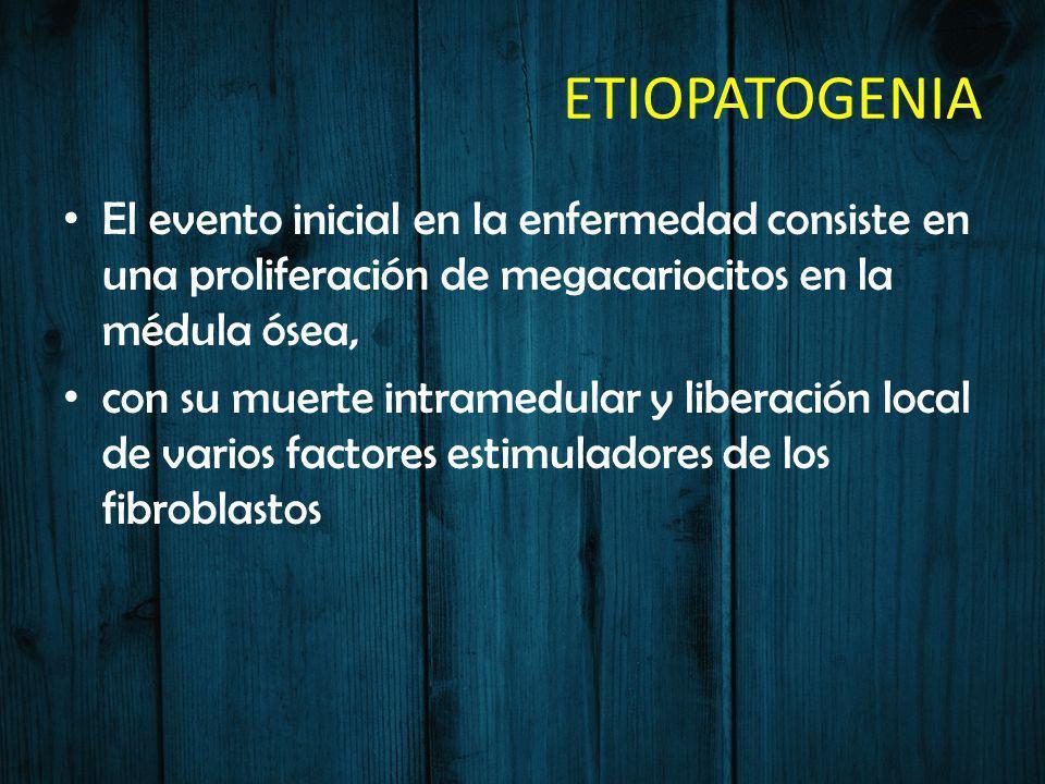 ETIOPATOGENIA El evento inicial en la enfermedad consiste en una proliferación de megacariocitos en la médula ósea, con su muerte intramedular y liber