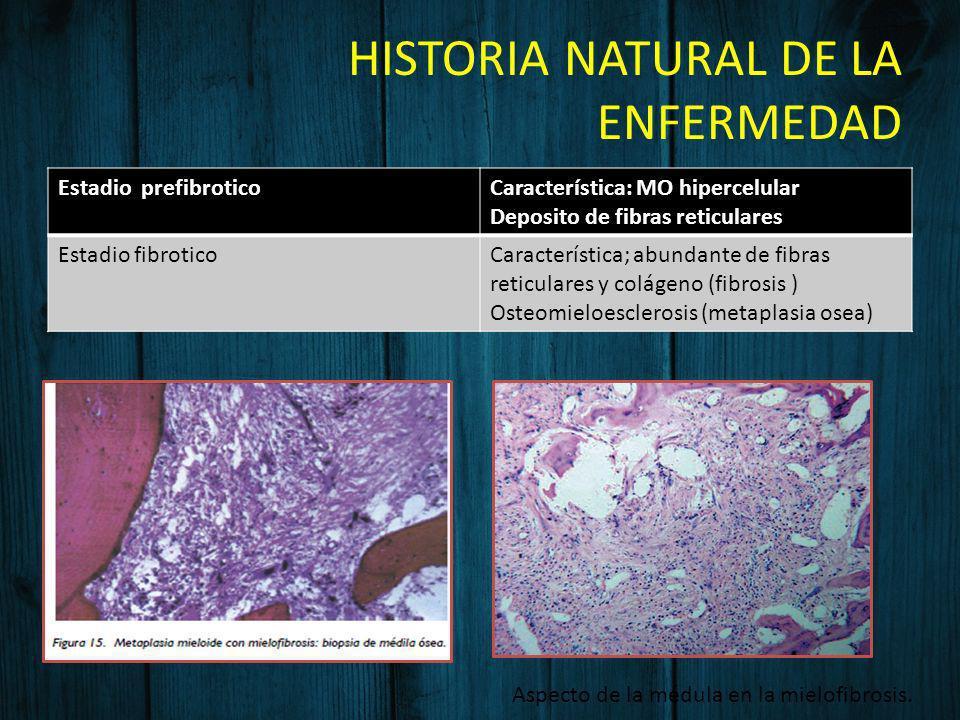 HISTORIA NATURAL DE LA ENFERMEDAD Estadio prefibroticoCaracterística: MO hipercelular Deposito de fibras reticulares Estadio fibroticoCaracterística;