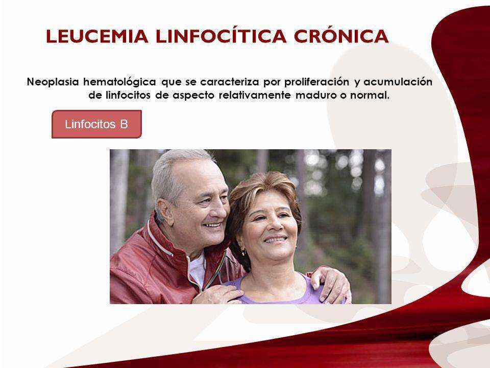 Neoplasia hematológica que se caracteriza por proliferación y acumulación de linfocitos de aspecto relativamente maduro o normal. LEUCEMIA LINFOCÍTICA