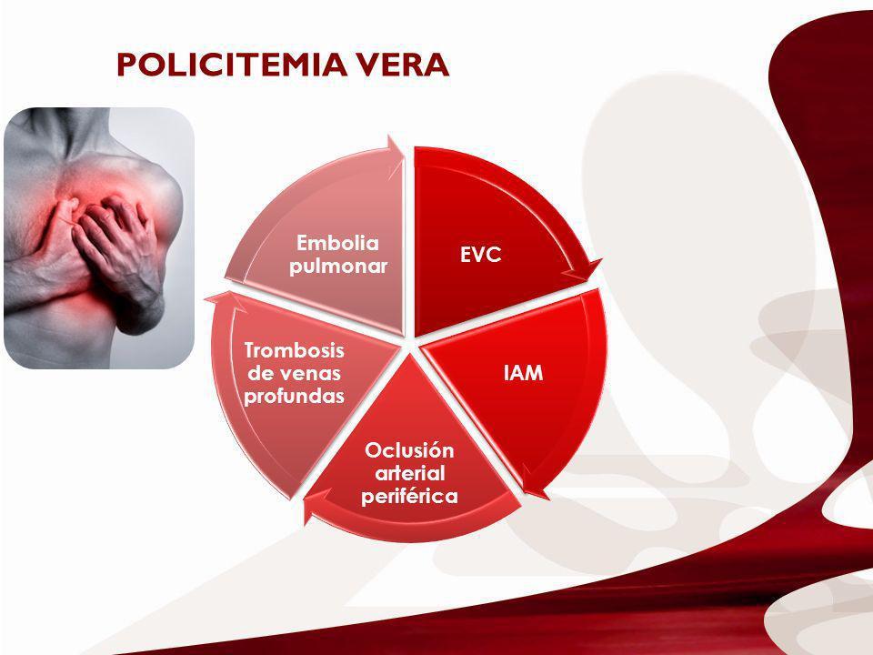 EVC IAM Oclusión arterial periférica Trombosis de venas profundas Embolia pulmonar POLICITEMIA VERA