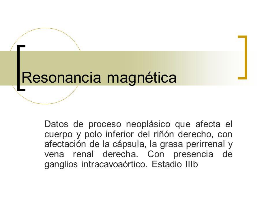 Resonancia magnética Datos de proceso neoplásico que afecta el cuerpo y polo inferior del riñón derecho, con afectación de la cápsula, la grasa perirr