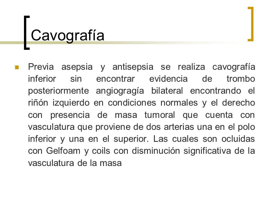 Cavografía Previa asepsia y antisepsia se realiza cavografía inferior sin encontrar evidencia de trombo posteriormente angiogragía bilateral encontran