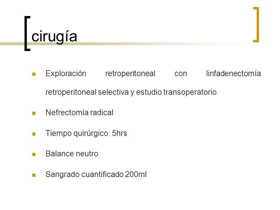 cirugía Exploración retroperitoneal con linfadenectomía retroperitoneal selectiva y estudio transoperatorio Nefrectomía radical Tiempo quirúrgico: 5hr