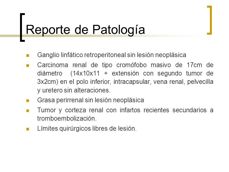 Reporte de Patología Ganglio linfático retroperitoneal sin lesión neoplásica Carcinoma renal de tipo cromófobo masivo de 17cm de diámetro (14x10x11 +
