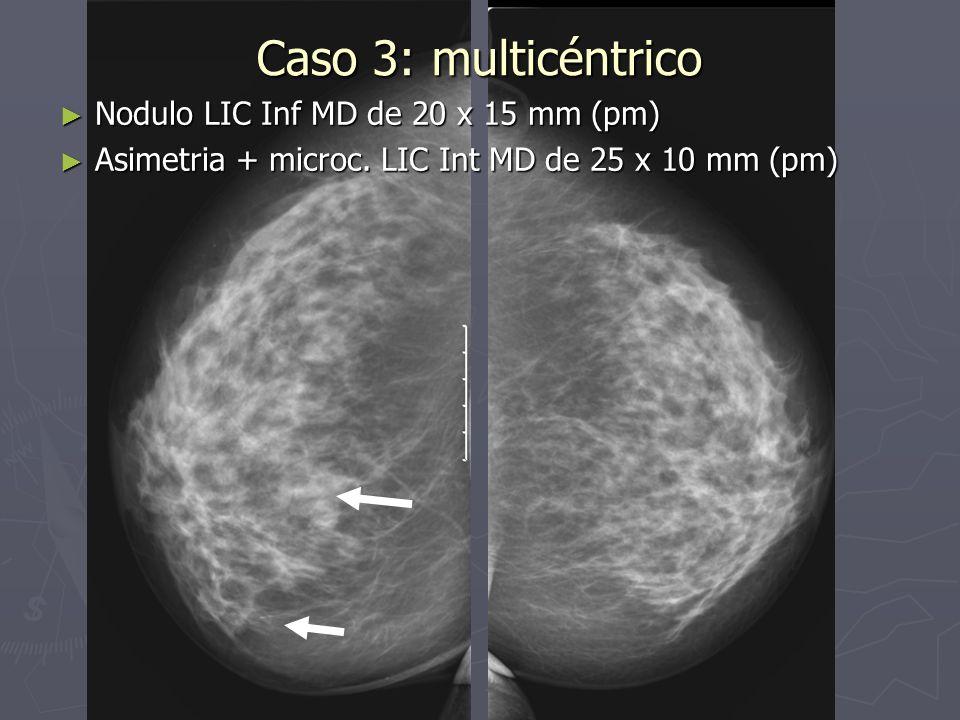 Caso 3: multicéntrico Nodulo LIC Inf MD de 20 x 15 mm (pm) Nodulo LIC Inf MD de 20 x 15 mm (pm) Asimetria + microc. LIC Int MD de 25 x 10 mm (pm) Asim