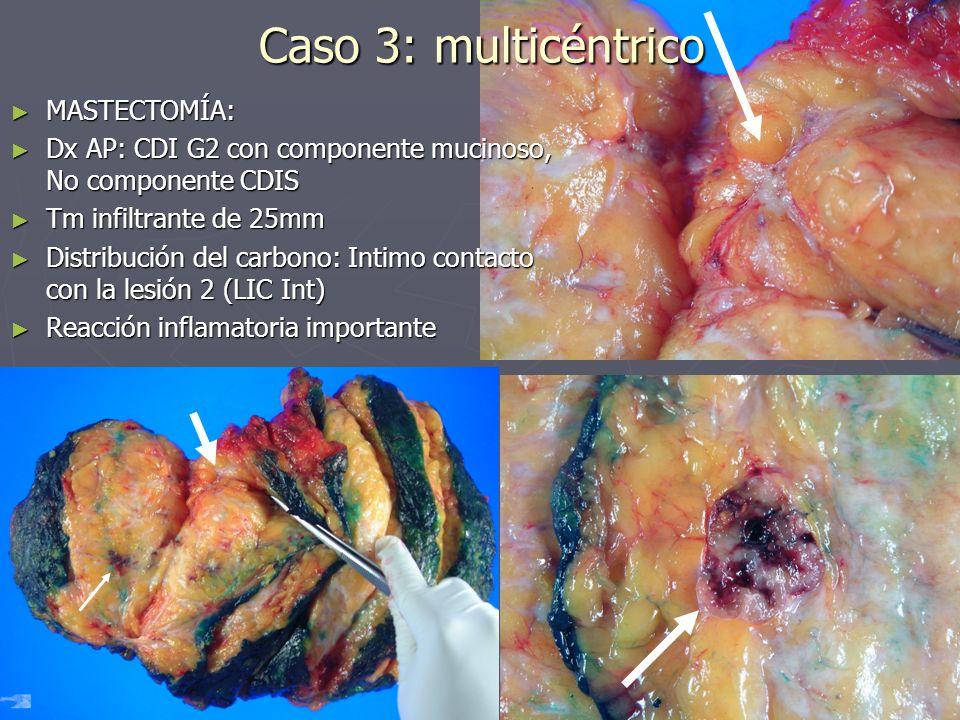 MASTECTOMÍA: MASTECTOMÍA: Dx AP: CDI G2 con componente mucinoso, No componente CDIS Dx AP: CDI G2 con componente mucinoso, No componente CDIS Tm infil