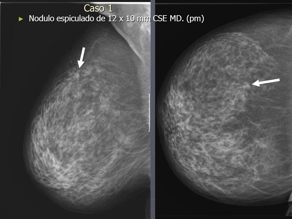 Caso 1 Alteración de ecogenicidad con márgenes irregulares en CSE MD del mismo tamaño que en la MX.