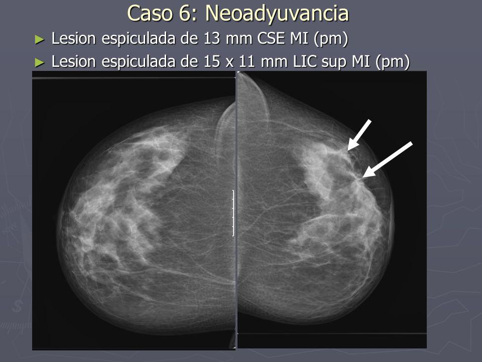 Caso 6: Neoadyuvancia Lesion espiculada de 13 mm CSE MI (pm) Lesion espiculada de 13 mm CSE MI (pm) Lesion espiculada de 15 x 11 mm LIC sup MI (pm) Le