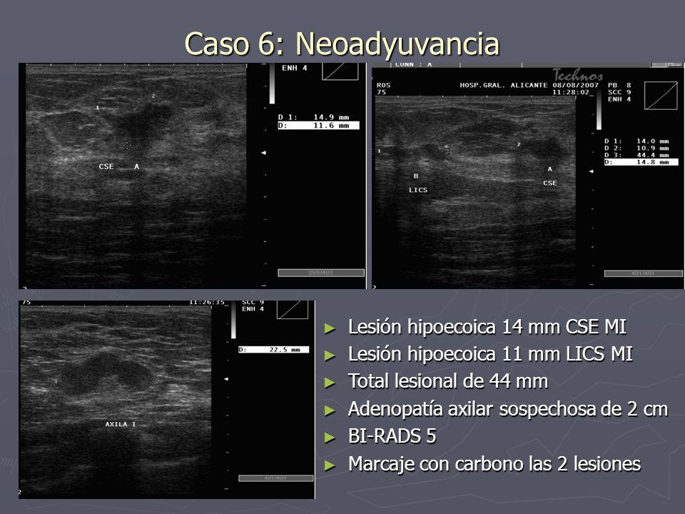 Caso 6: Neoadyuvancia Lesión hipoecoica 14 mm CSE MI Lesión hipoecoica 14 mm CSE MI Lesión hipoecoica 11 mm LICS MI Lesión hipoecoica 11 mm LICS MI To