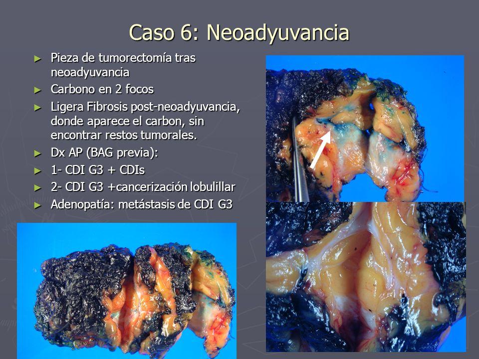 Caso 6: Neoadyuvancia Pieza de tumorectomía tras neoadyuvancia Pieza de tumorectomía tras neoadyuvancia Carbono en 2 focos Carbono en 2 focos Ligera F