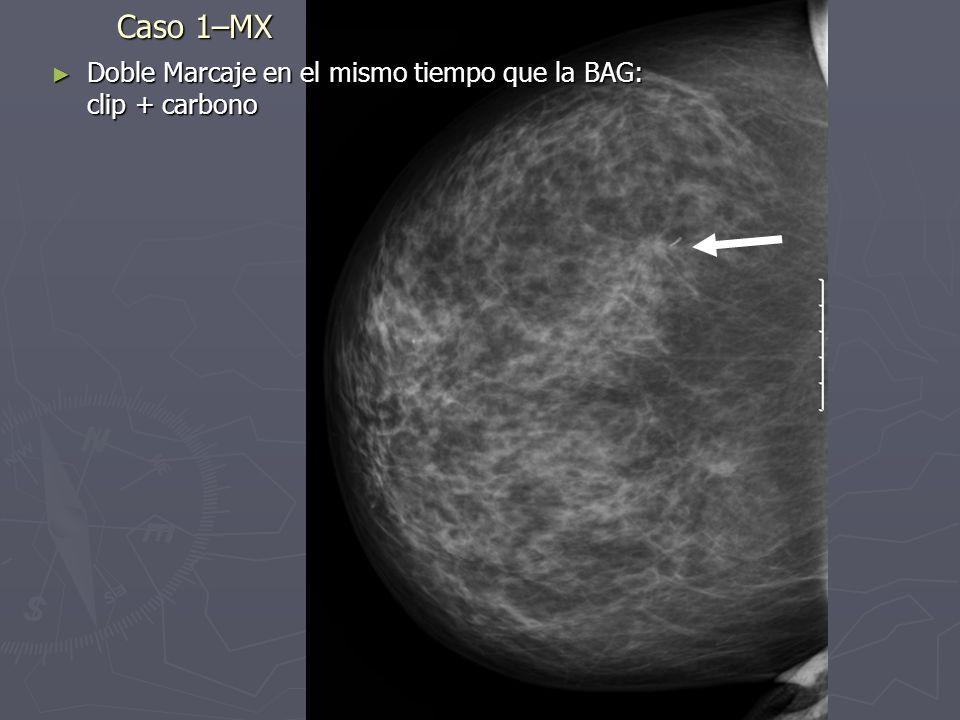 Caso 6: Neoadyuvancia Lesion espiculada de 13 mm CSE MI (pm) Lesion espiculada de 13 mm CSE MI (pm) Lesion espiculada de 15 x 11 mm LIC sup MI (pm) Lesion espiculada de 15 x 11 mm LIC sup MI (pm) Adenopatias axilares sospechosas Adenopatias axilares sospechosas