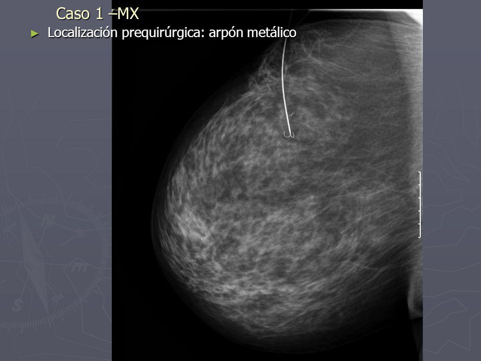 Caso 1 –AP: pieza de tumorectomía Dx AP: CDI G1, No componente CDIS Dx AP: CDI G1, No componente CDIS Tm infiltrante de 12 mm Tm infiltrante de 12 mm Distribución del carbon: < 5 mm de la lesión Distribución del carbon: < 5 mm de la lesión