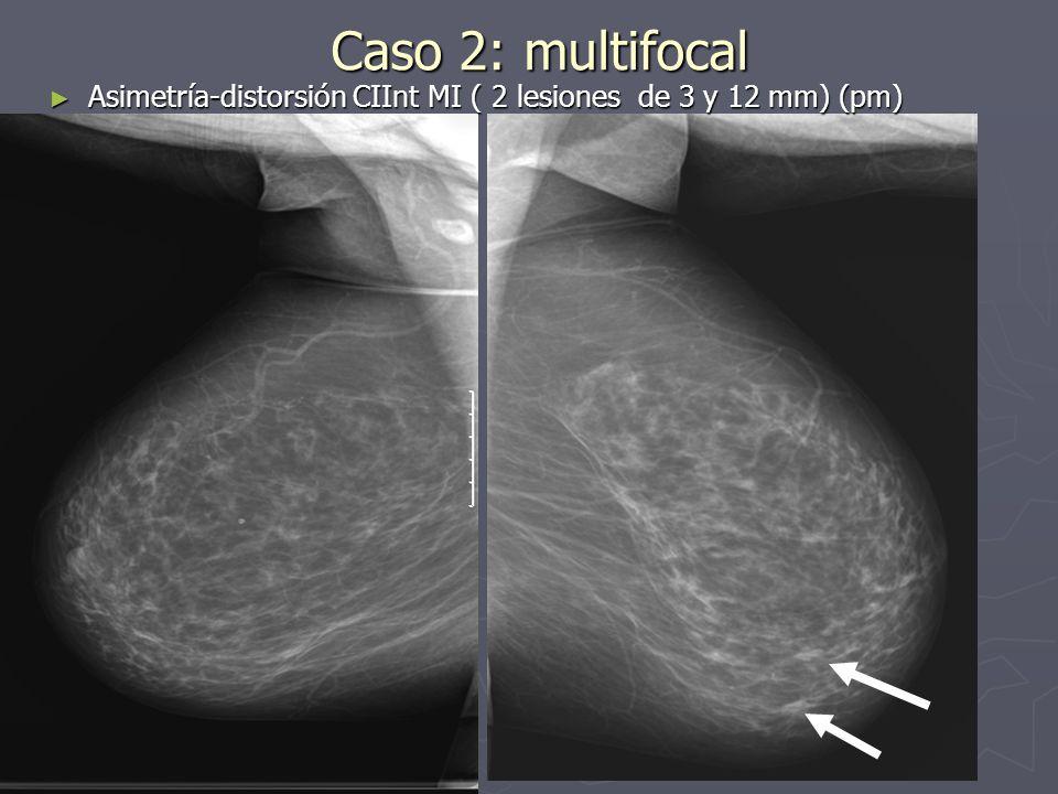 Caso 6: Neoadyuvancia Pieza de tumorectomía tras neoadyuvancia Pieza de tumorectomía tras neoadyuvancia Carbono en 2 focos Carbono en 2 focos Ligera Fibrosis post-neoadyuvancia, donde aparece el carbon, sin encontrar restos tumorales.