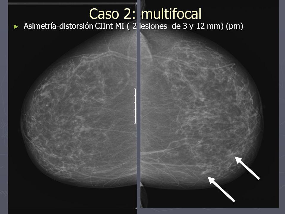 Caso 4: Ganglio axilar Tumorectomía Tumorectomía DX AP: Lesión 1: CDI G1, Lesión 2: fibroadenoma DX AP: Lesión 1: CDI G1, Lesión 2: fibroadenoma Ganglio axilar de difícil acceso quirúrgico: no afectado, escindido completamente y con carbono Ganglio axilar de difícil acceso quirúrgico: no afectado, escindido completamente y con carbono