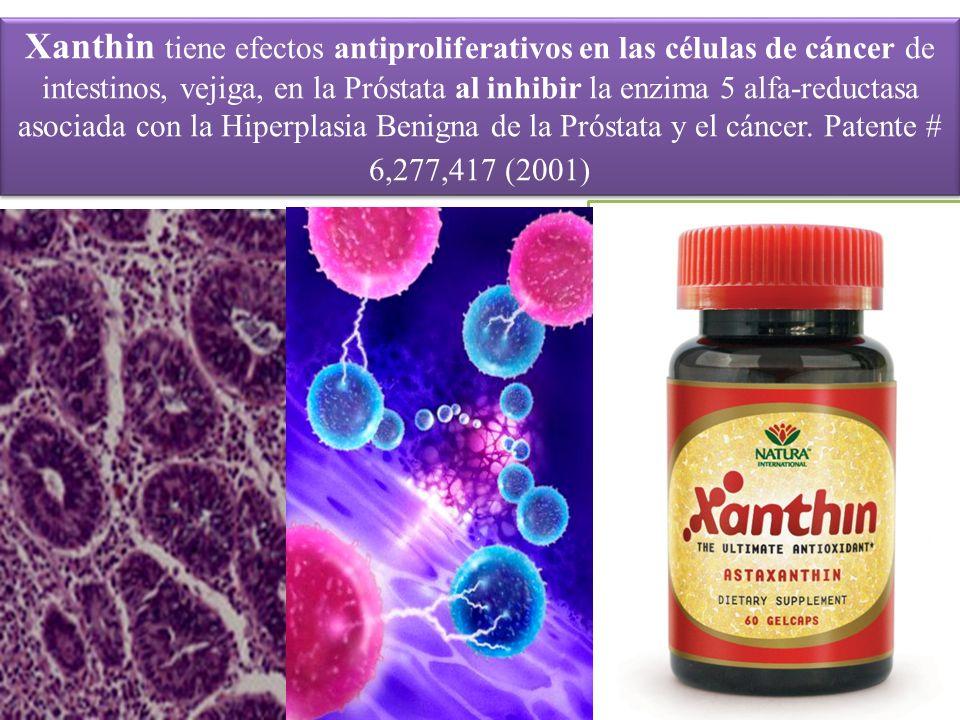 Xanthin tiene efectos antiproliferativos en las células de cáncer de intestinos, vejiga, en la Próstata al inhibir la enzima 5 alfa-reductasa asociada