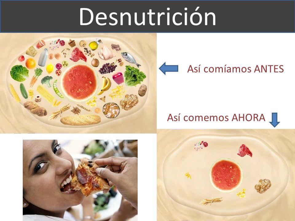 Así comíamos ANTES Así comemos AHORA Desnutrición