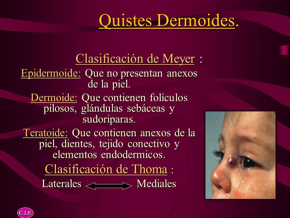 Quistes Dermoides.