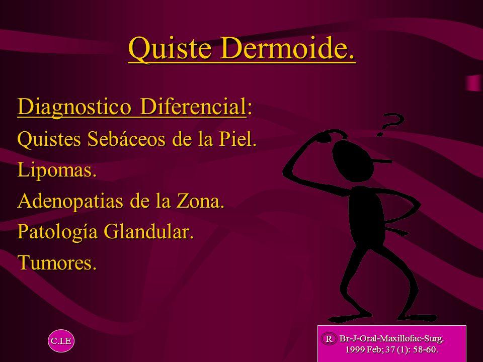 Quistes Dermoides Métodos de Diagnostico Quistes Dermoides. Métodos de Diagnostico. Estudios Histopatologicos. Punción Aspirativa. Ecografía. Pantomog