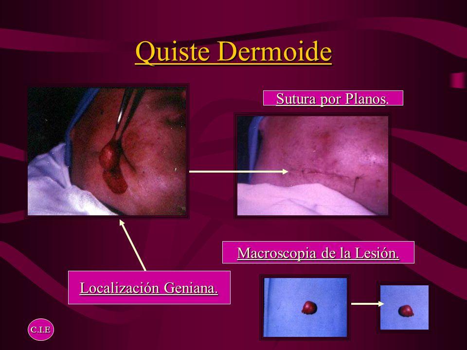 Quiste Dermoide Línea Media Nasal Línea Media Nasal. Remoción Completa C.I.E