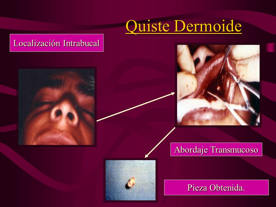 Quiste Dermoide Localización Geniana. Sutura por Planos Sutura por Planos. Macroscopia de la Lesión. C.I.E