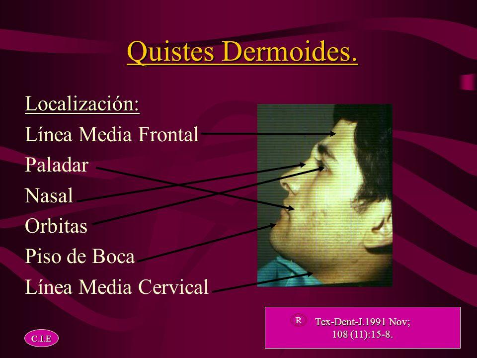 Histogenesis. Teoría Congénita. Teoría Adquirida o de Teoría Adquirida o deImplantación. C.I.E Br-J-Oral-Maxillofac-Surg. 2000 Apr;38 (2):107-9 2000 A