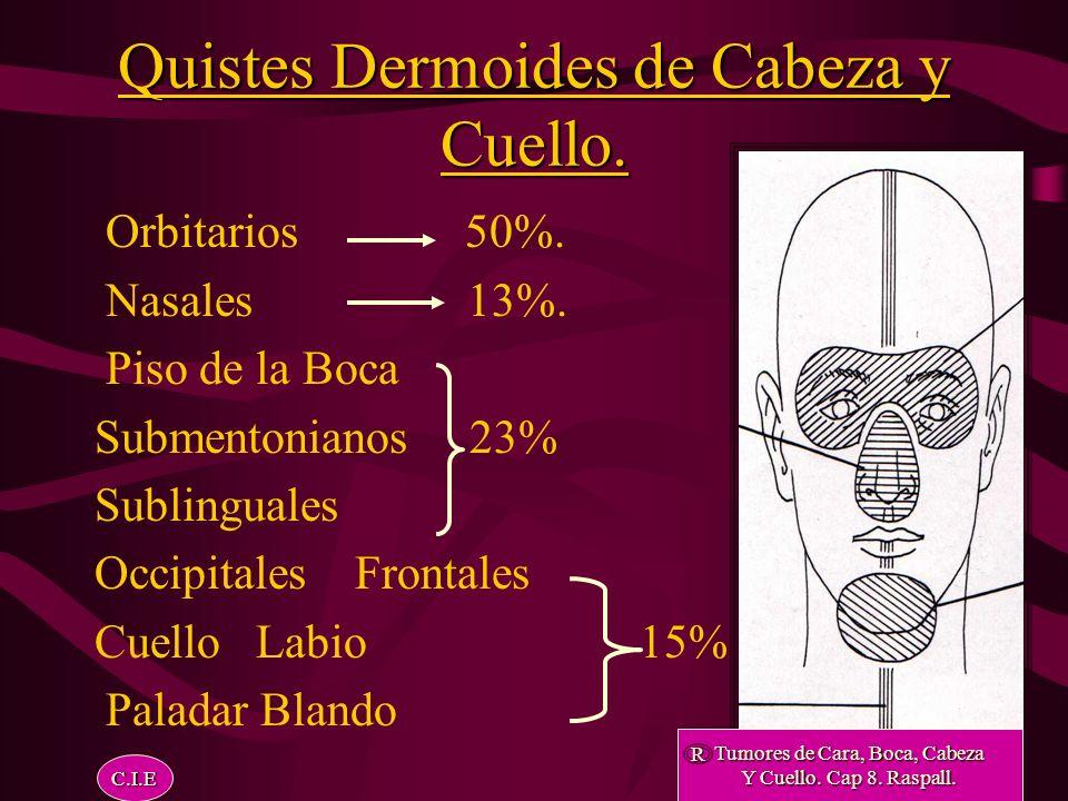 Quistes Dermoides. Localización: Línea Media Frontal Paladar Nasal Orbitas Piso de Boca Línea Media Cervical Tex-Dent-J.1991 Nov; 108 (11):15-8. R C.I