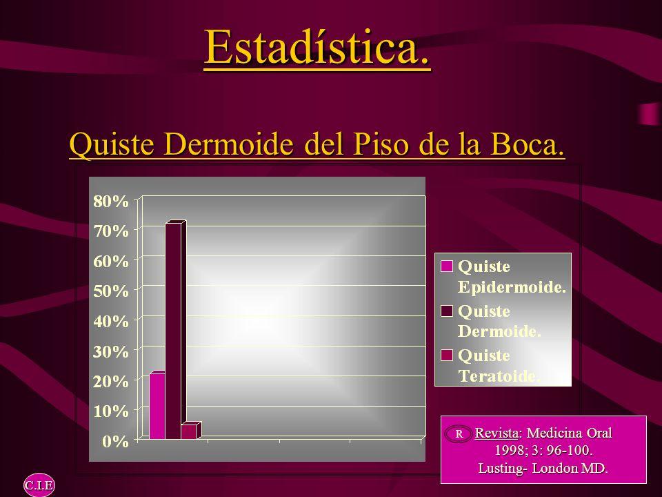 Estadística.Quiste Dermoide del Piso de la Boca. Revista: Medicina Oral 1998; 3: 96-100.