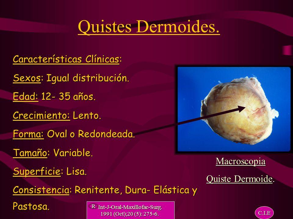 Estadística. Quiste Dermoide del Piso de la Boca. Revista: Medicina Oral 1998; 3: 96-100. Lusting- London MD. R C.I.E
