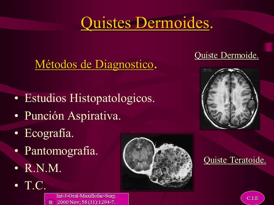 Quistes Dermoides Métodos de Diagnostico Quistes Dermoides.