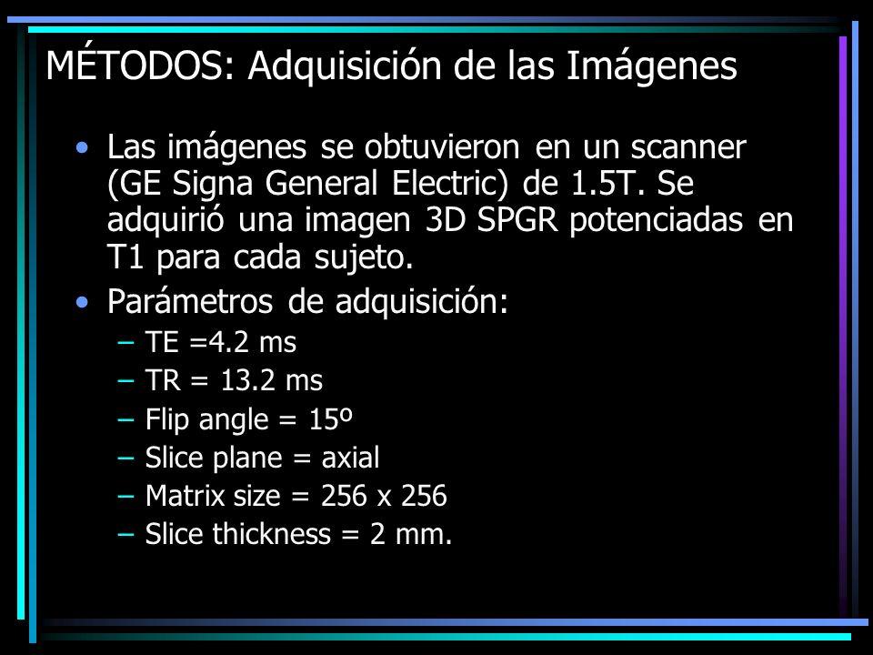 MÉTODOS: Adquisición de las Imágenes Las imágenes se obtuvieron en un scanner (GE Signa General Electric) de 1.5T. Se adquirió una imagen 3D SPGR pote
