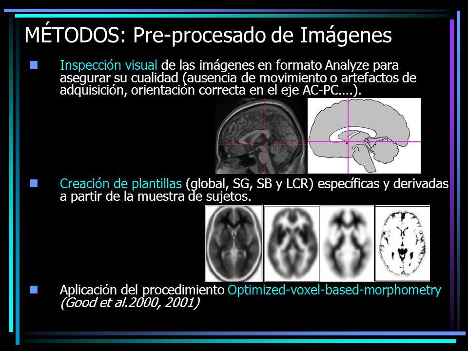 MÉTODOS: Pre-procesado de Imágenes Inspección visual de las imágenes en formato Analyze para asegurar su cualidad (ausencia de movimiento o artefactos