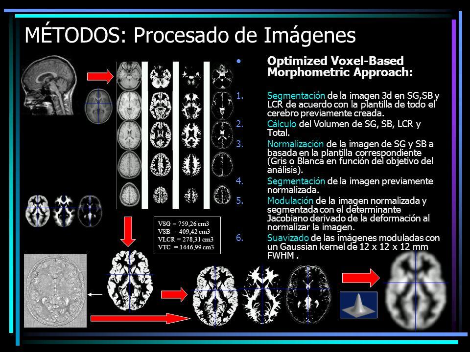 MÉTODOS: Procesado de Imágenes Optimized Voxel-Based Morphometric Approach: 1.Segmentación de la imagen 3d en SG,SB y LCR de acuerdo con la plantilla