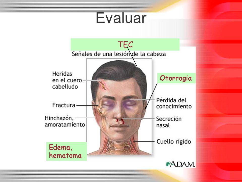 Evaluar Edema, hematoma Otorragia TEC