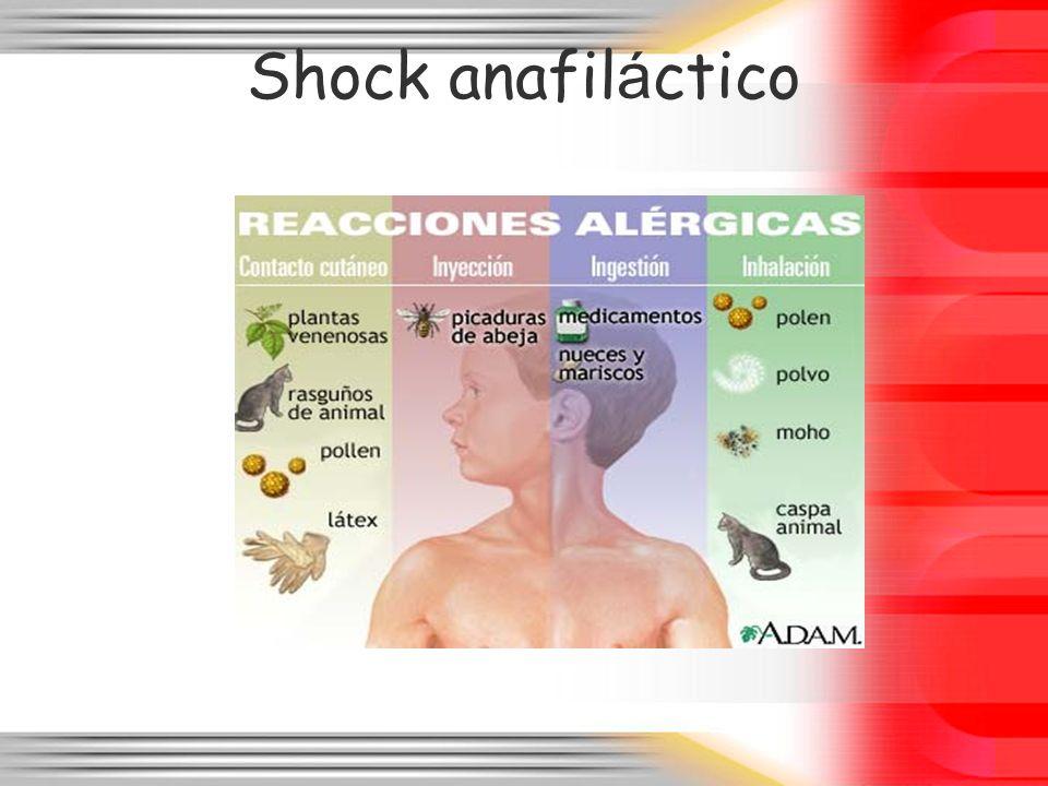 Shock anafil á ctico