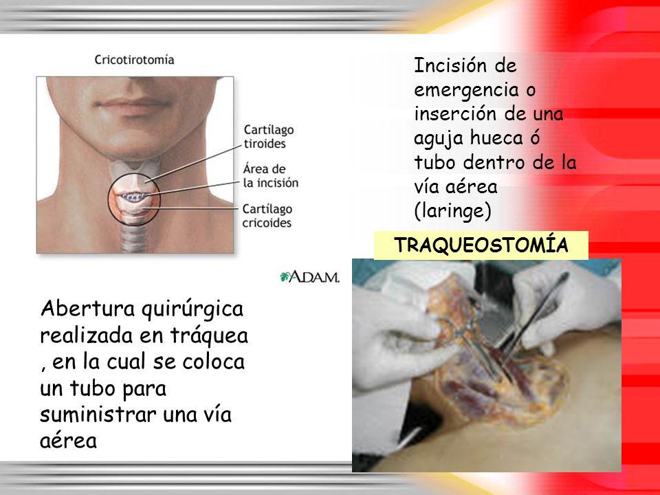 Incisión de emergencia o inserción de una aguja hueca ó tubo dentro de la vía aérea (laringe) Abertura quirúrgica realizada en tráquea, en la cual se