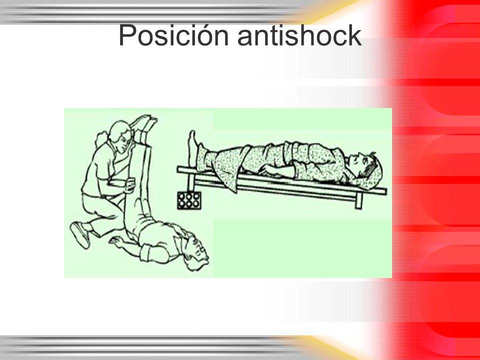 Posición antishock