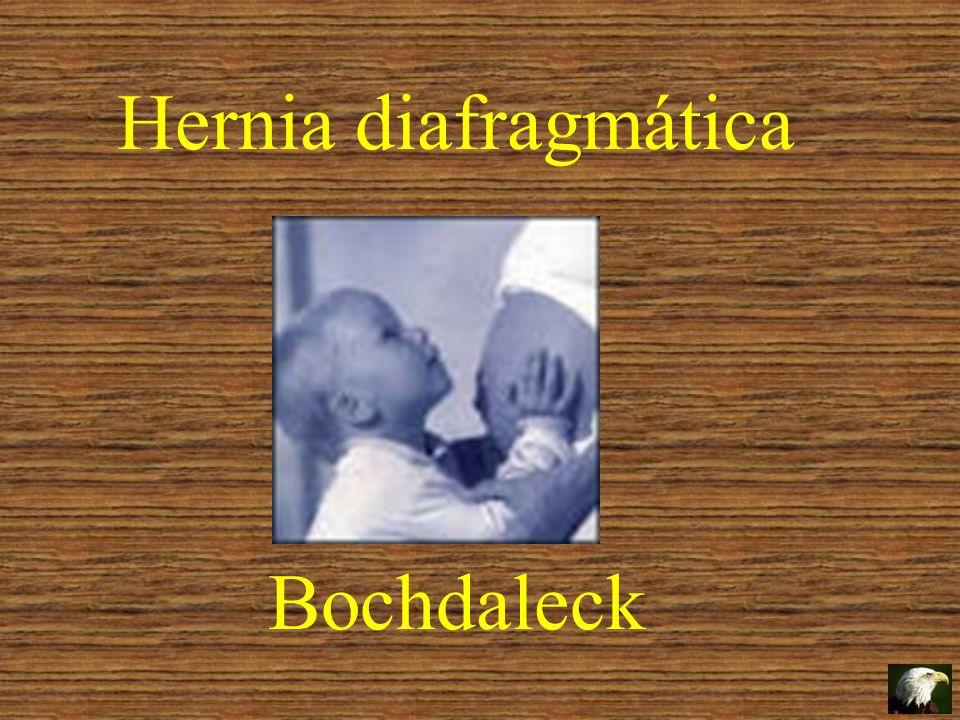 Hernia diafragmática Bochdaleck