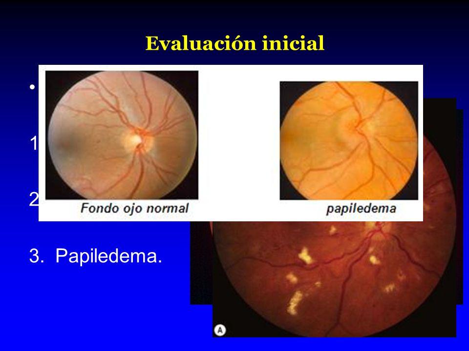 Evaluación inicial Sin utilizar midriáticos. 1.Hemorragias. 2.Exudados. 3.Papiledema.
