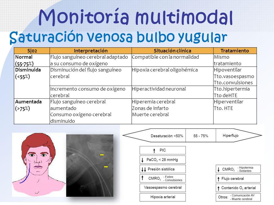 Saturación venosa bulbo yugular Monitoría multimodal Sj02InterpretaciónSituación clínicaTratamiento Normal (55-75%) Flujo sanguíneo cerebral adaptado