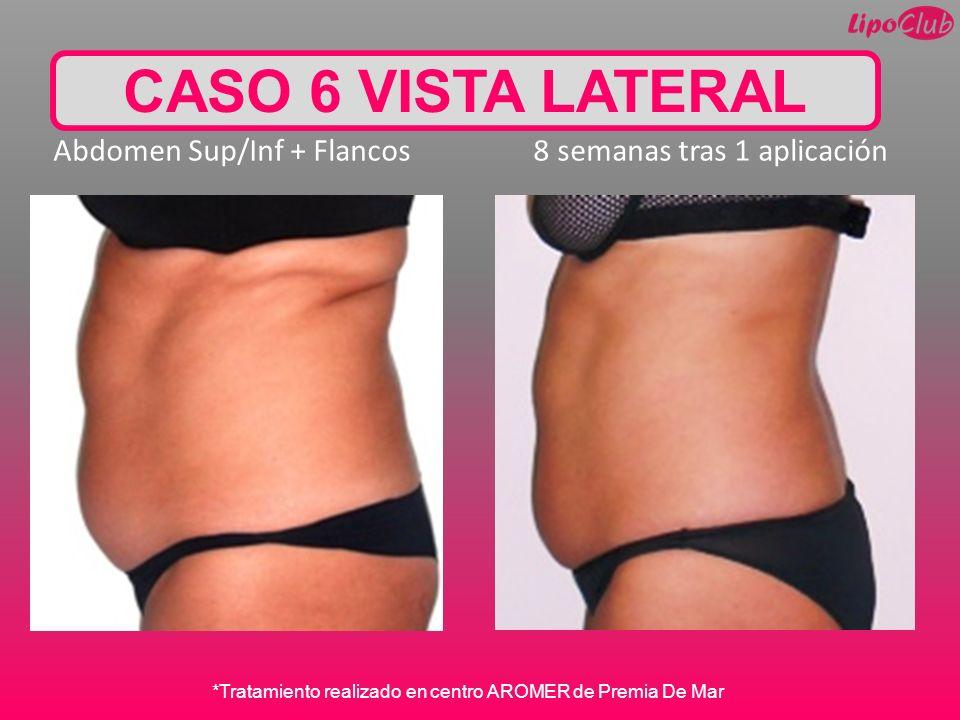 CASO 6 VISTA LATERAL Abdomen Sup/Inf + Flancos 8 semanas tras 1 aplicación *Tratamiento realizado en centro AROMER de Premia De Mar
