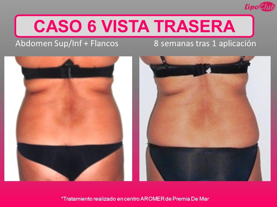 CASO 6 VISTA TRASERA Abdomen Sup/Inf + Flancos 8 semanas tras 1 aplicación *Tratamiento realizado en centro AROMER de Premia De Mar